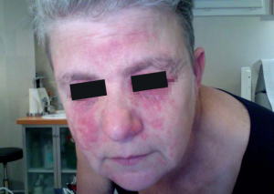 eczema-contact